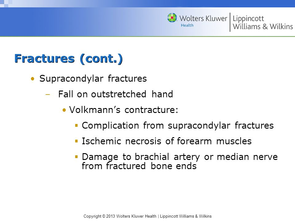 Fractures (cont.) Supracondylar fractures Fall on outstretched hand