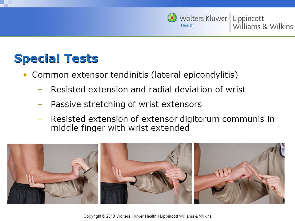 Special Tests Common extensor tendinitis (lateral epicondylitis)