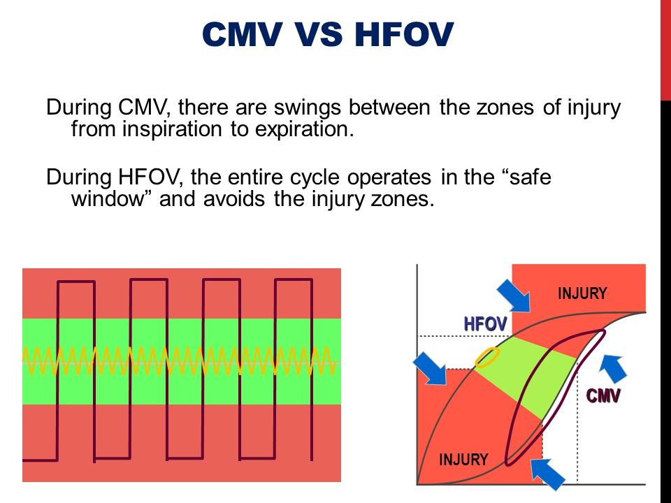 CMV VS HFOV During CMV, there are swings between the zones of injury from inspiration to expiration.