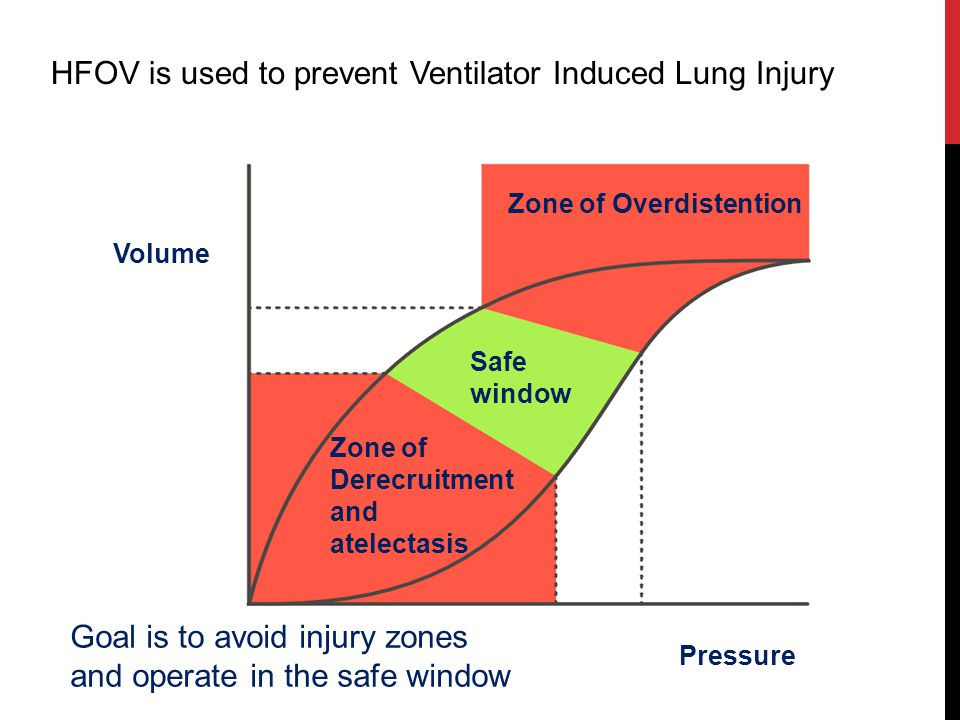 HFOV is used to prevent Ventilator Induced Lung Injury