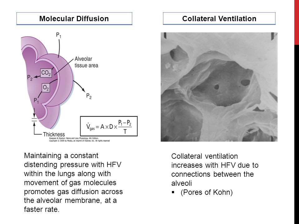 Collateral Ventilation