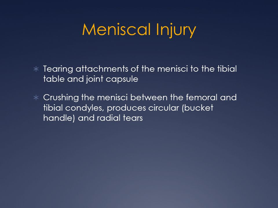 Meniscal Injury Tearing attachments of the menisci to the tibial table and joint capsule.