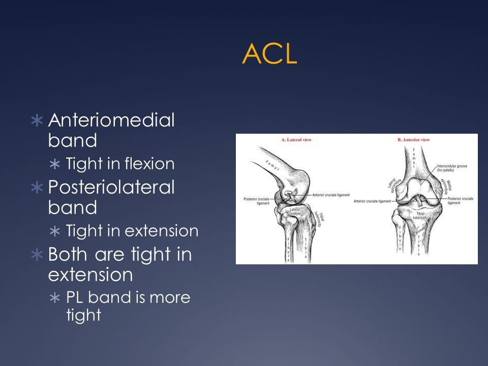 ACL Anteriomedial band Posteriolateral band