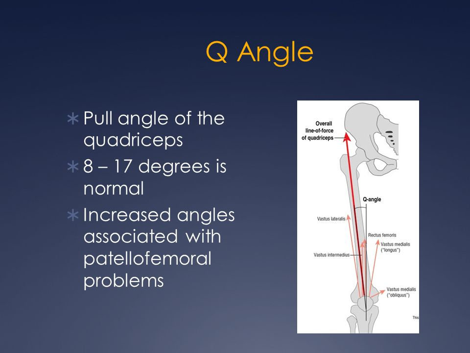 Q Angle Pull angle of the quadriceps 8 – 17 degrees is normal