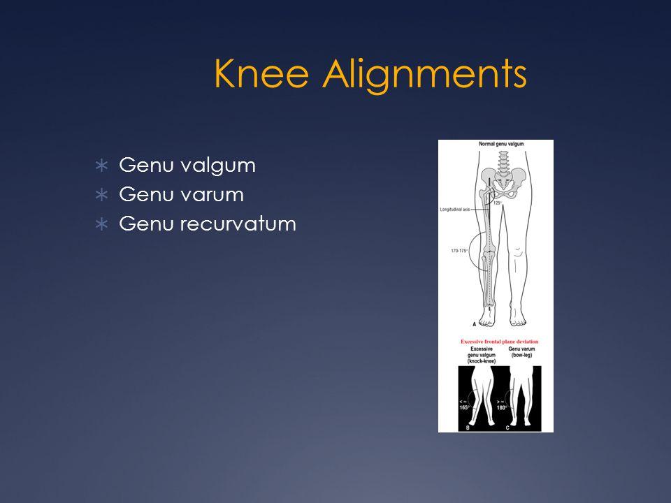 Knee Alignments Genu valgum Genu varum Genu recurvatum