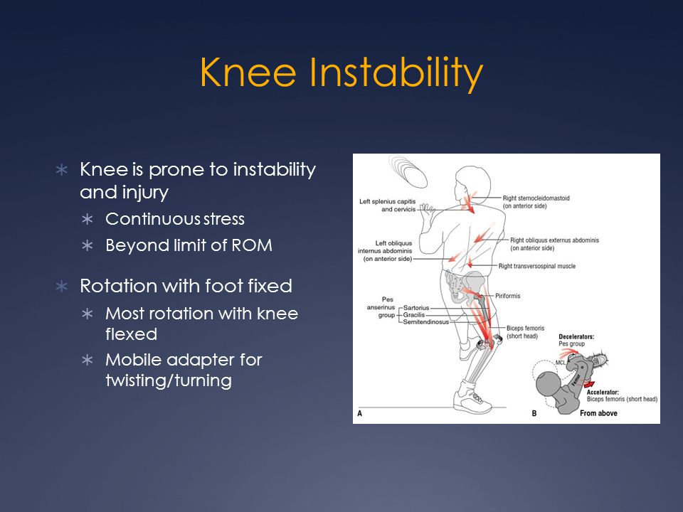 Knee Instability Knee is prone to instability and injury