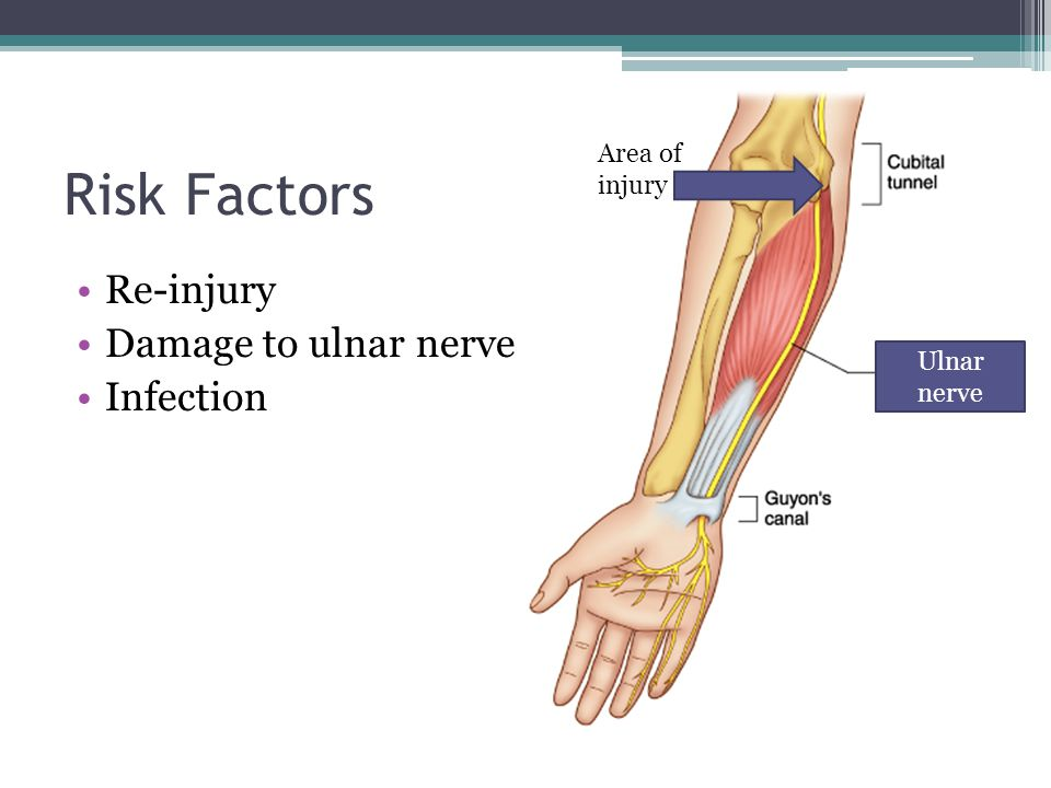 Risk Factors Re-injury Damage to ulnar nerve Infection Area of injury