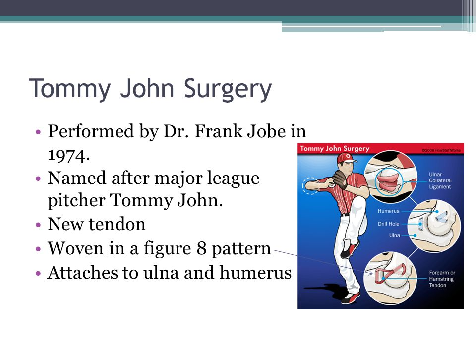 Tommy John Surgery Performed by Dr. Frank Jobe in 1974.