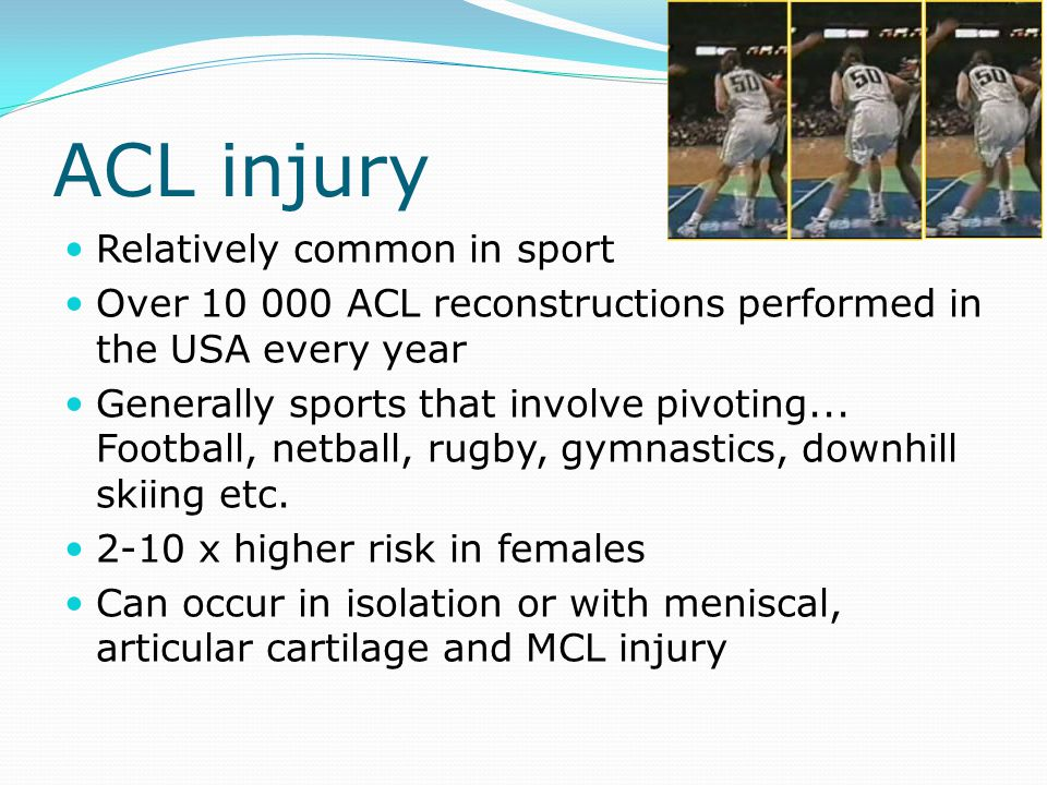 ACL injury Relatively common in sport