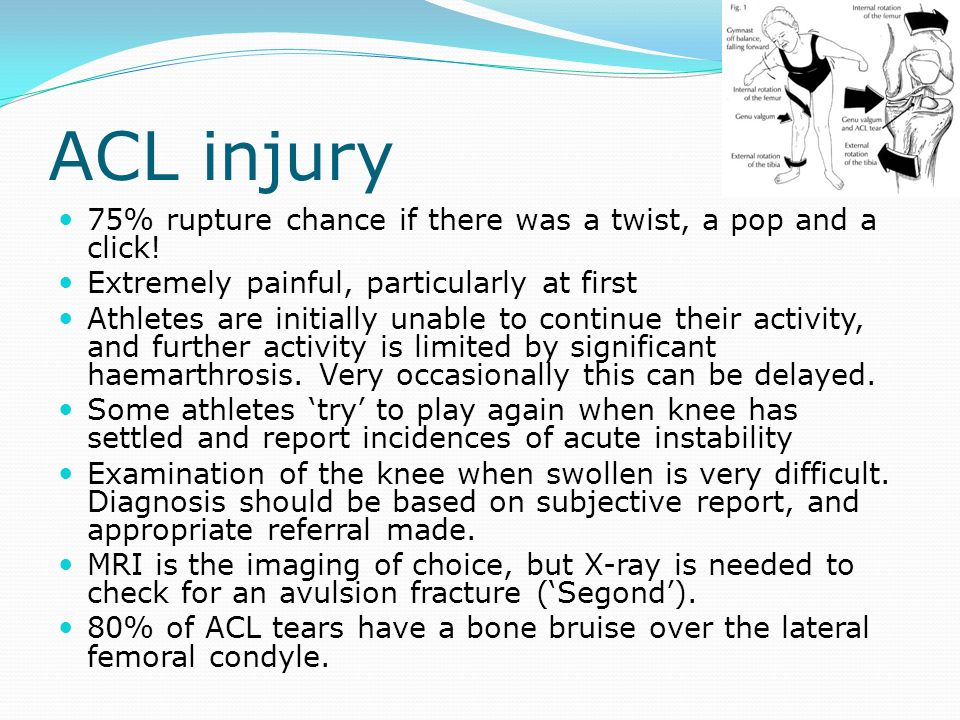 ACL injury 75% rupture chance if there was a twist, a pop and a click!