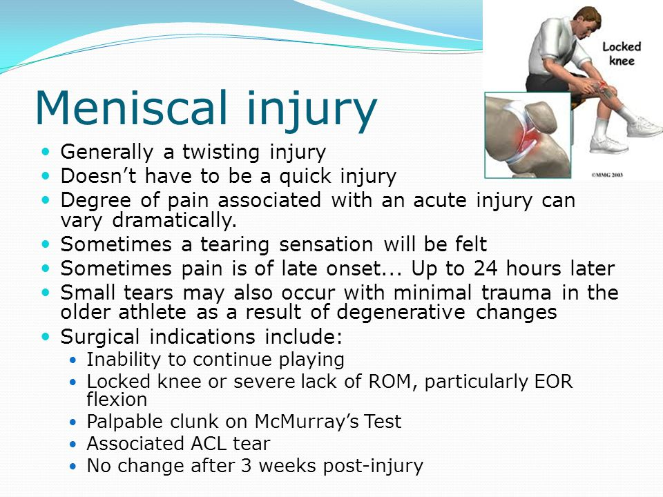 Meniscal injury Generally a twisting injury