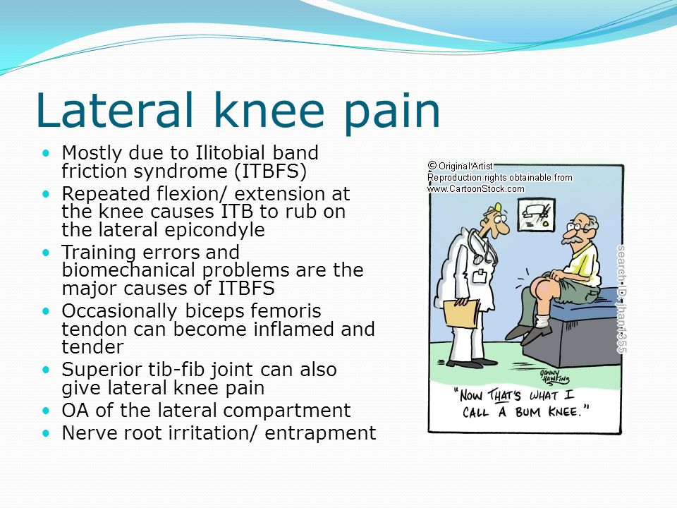 Lateral knee pain Mostly due to Ilitobial band friction syndrome (ITBFS)