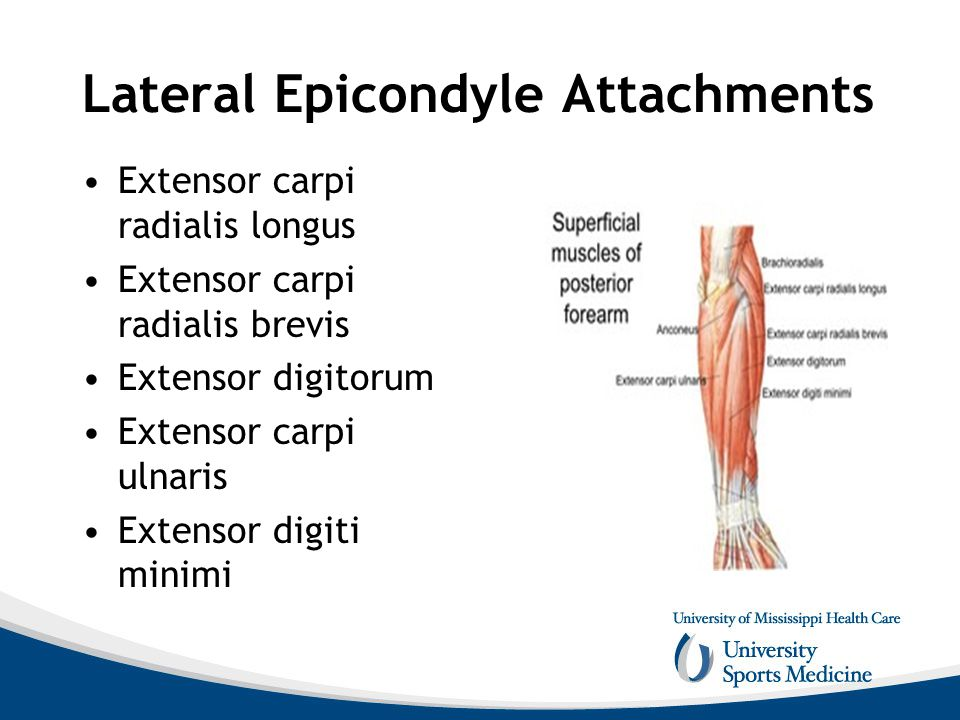 Lateral Epicondyle Attachments