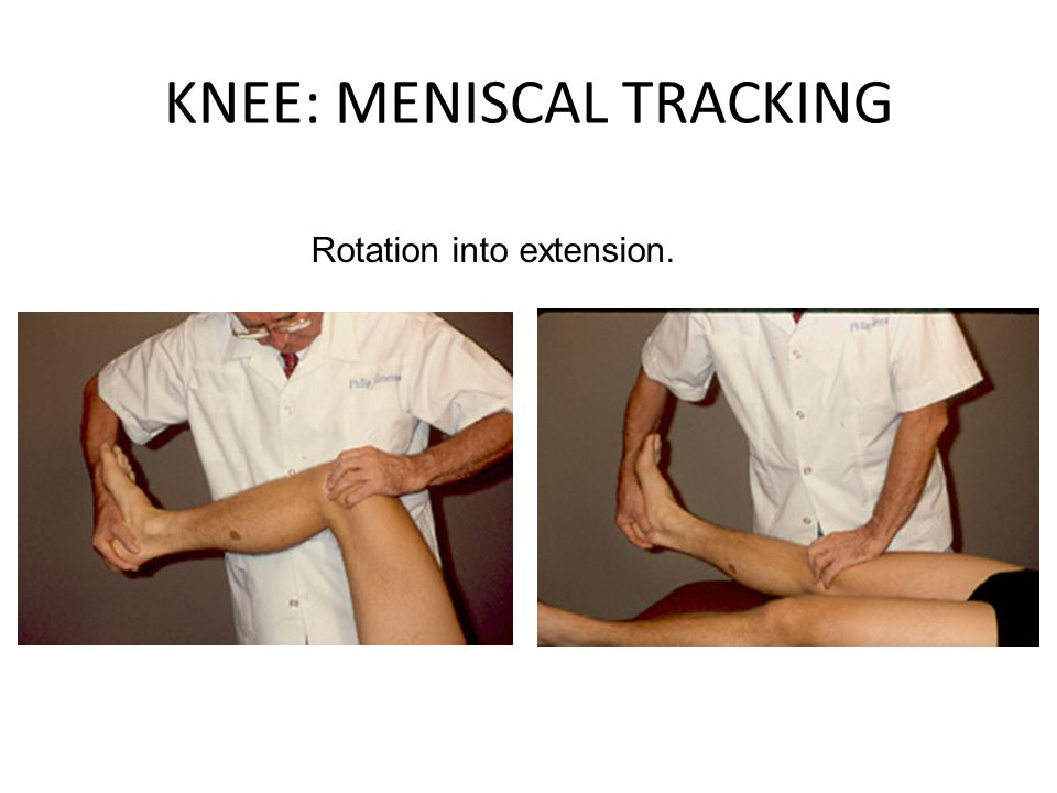 KNEE: MENISCAL TRACKING