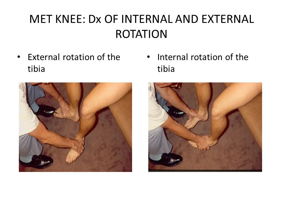MET KNEE: Dx OF INTERNAL AND EXTERNAL ROTATION
