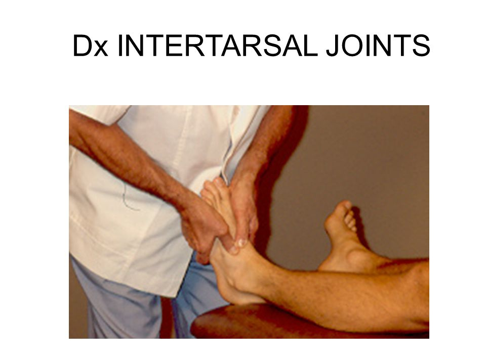 Dx INTERTARSAL JOINTS