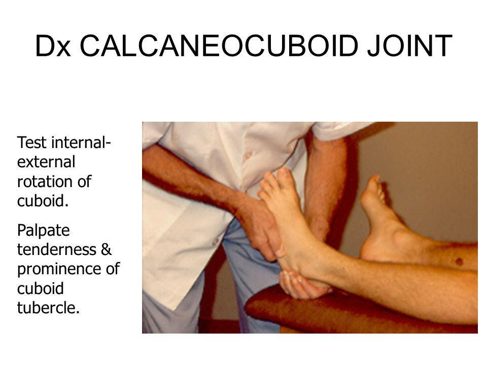 Dx CALCANEOCUBOID JOINT