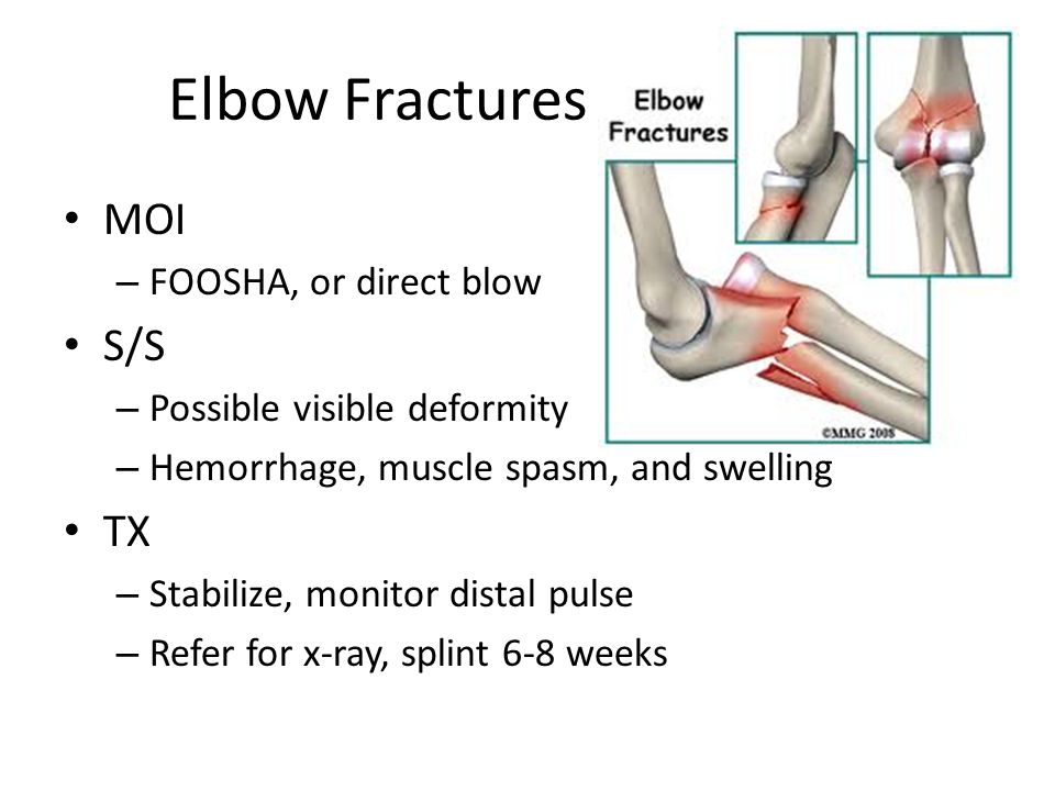 Elbow Fractures MOI S/S TX FOOSHA, or direct blow