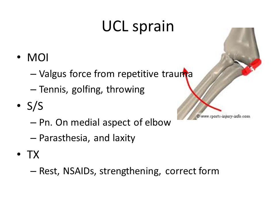 UCL sprain MOI S/S TX Valgus force from repetitive trauma