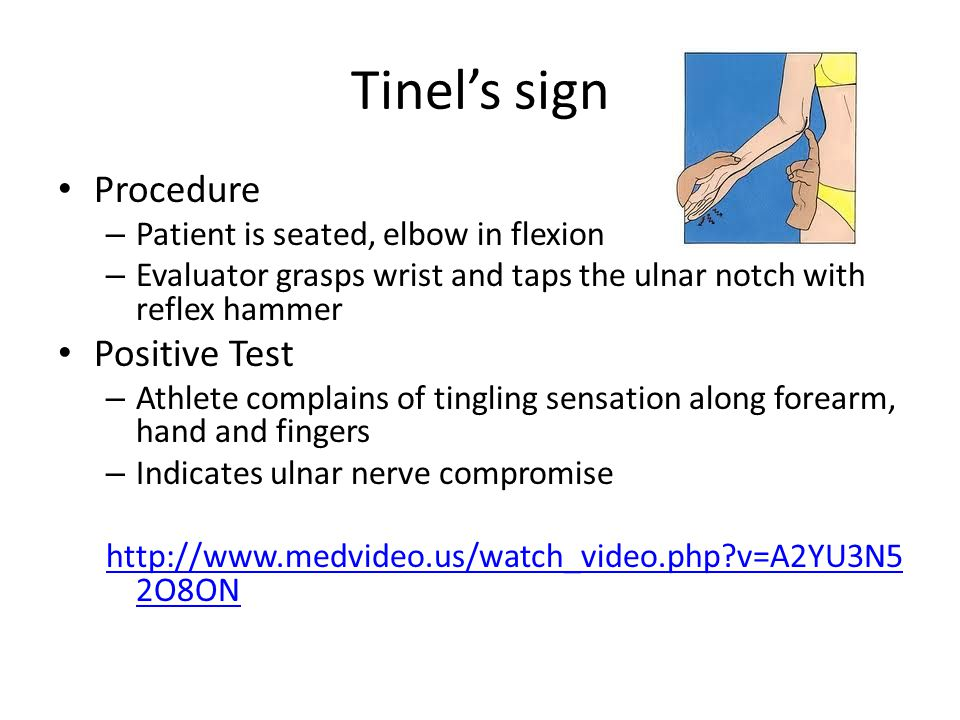Tinel's sign Procedure Positive Test