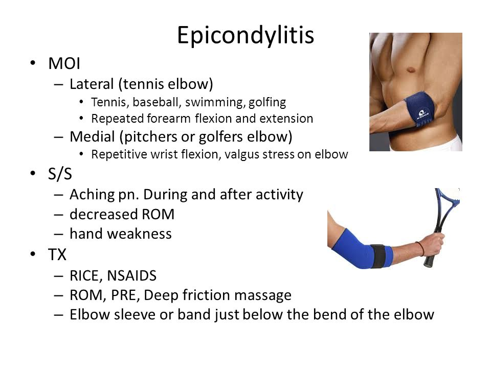 Epicondylitis MOI S/S TX Lateral (tennis elbow)