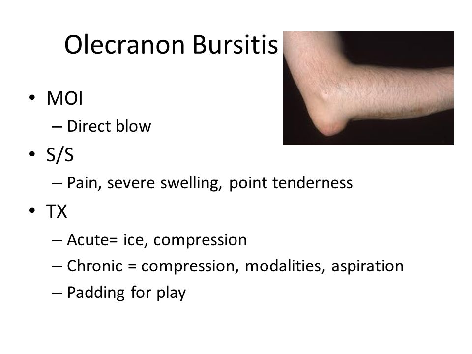 Olecranon Bursitis MOI S/S TX Direct blow