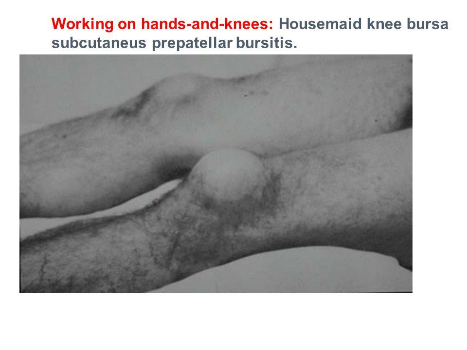 Working on hands-and-knees: Housemaid knee bursa