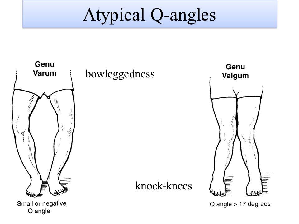 Atypical Q-angles bowleggedness knock-knees