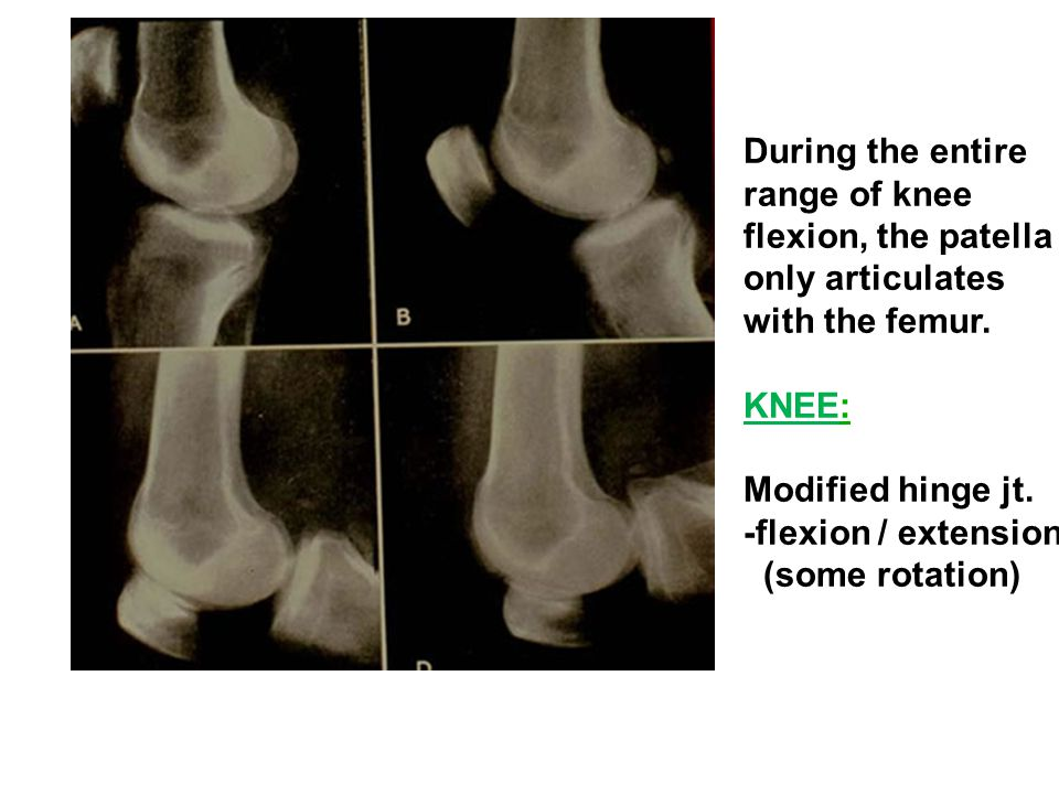 During the entire range of knee. flexion, the patella. only articulates. with the femur. KNEE: Modified hinge jt.