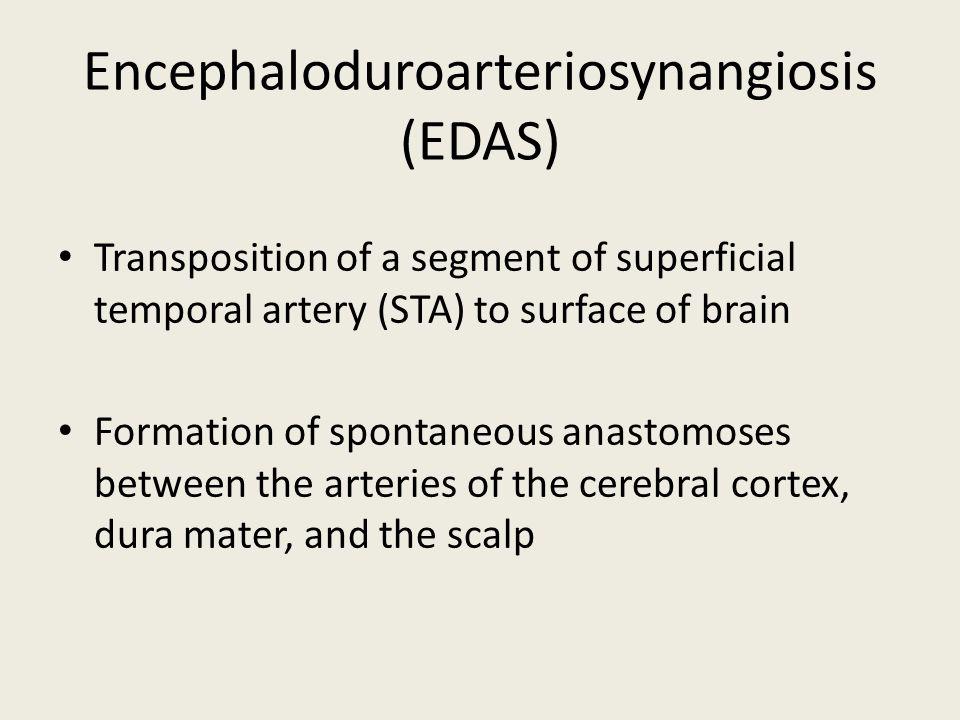 Encephaloduroarteriosynangiosis (EDAS)