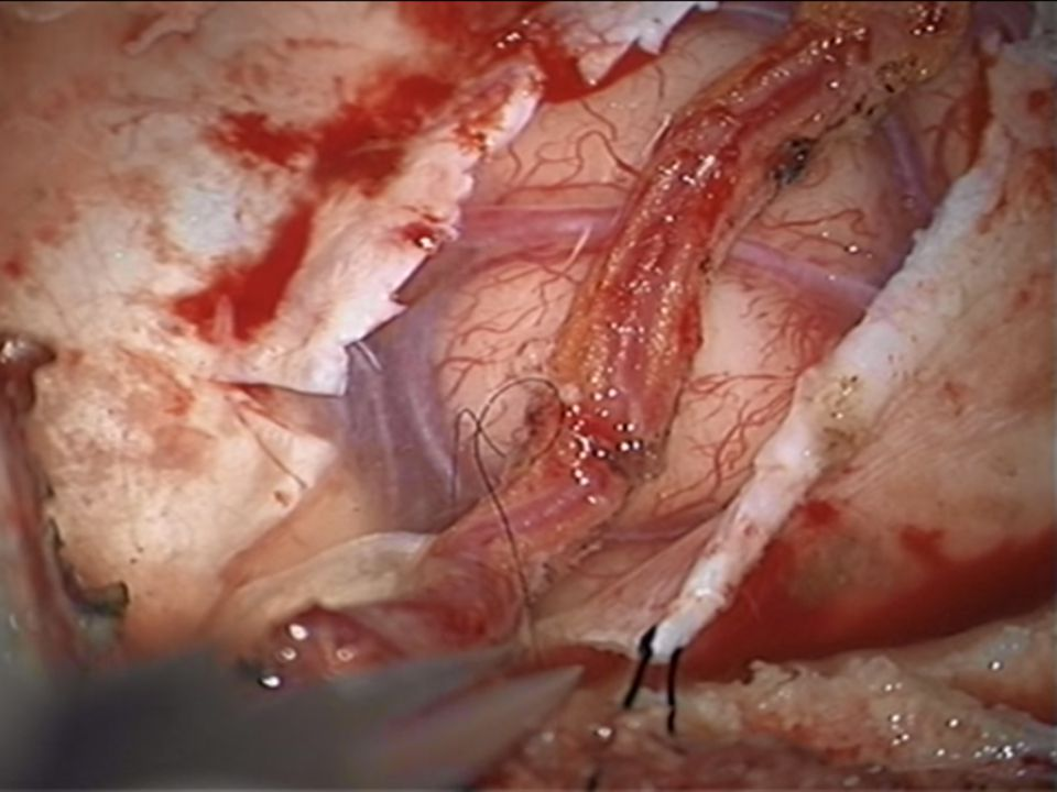 We then placed the artery on the pial surface and tacked it into position using 9-0 sutures.