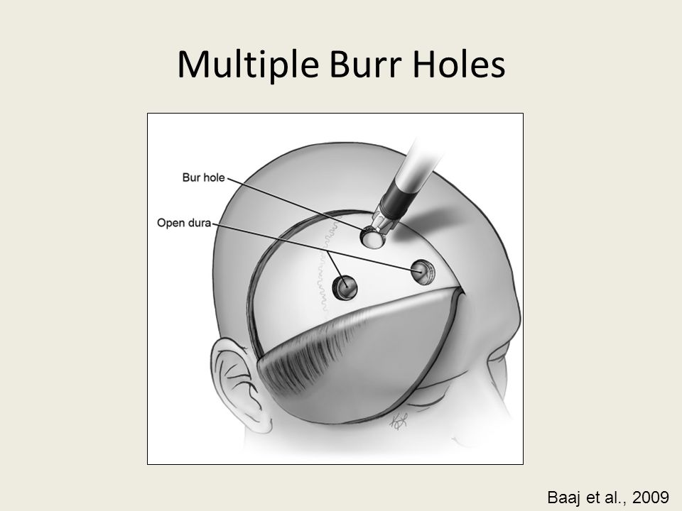 Multiple Burr Holes Baaj et al., 2009