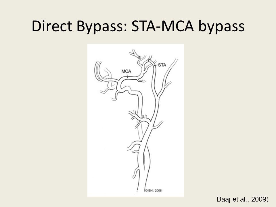 Direct Bypass: STA-MCA bypass