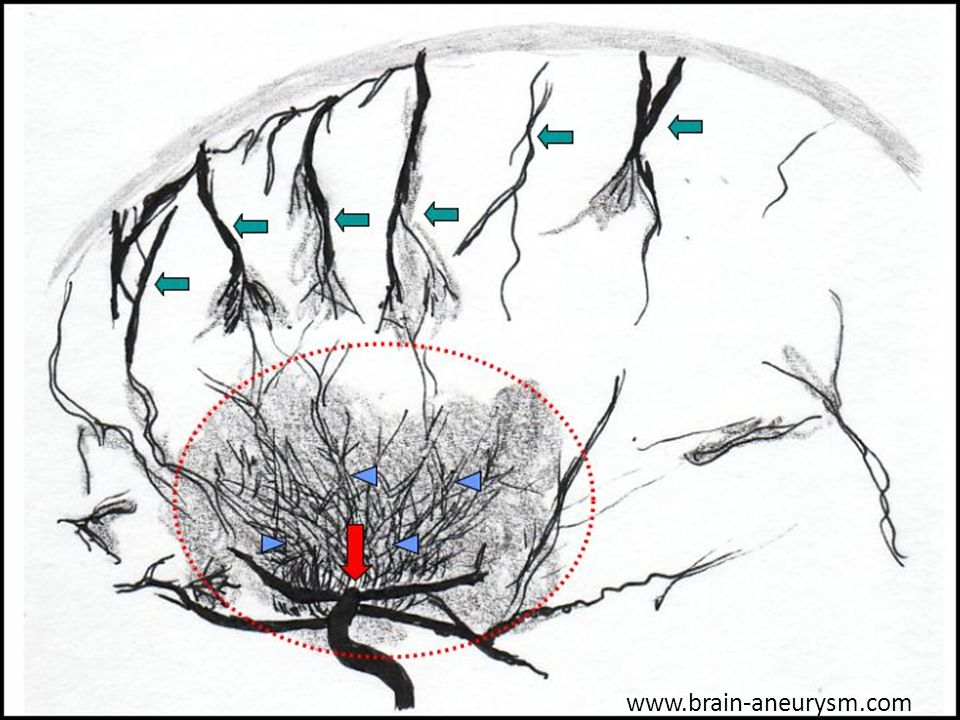 MMD is a chronic cerebrovascular disorder characterized by progressive occlusion of the intracranial vessels, beginning in the intracranial carotid as shown by the red arrow and moving to the anterior, middle, and posterior cerebral arteries.
