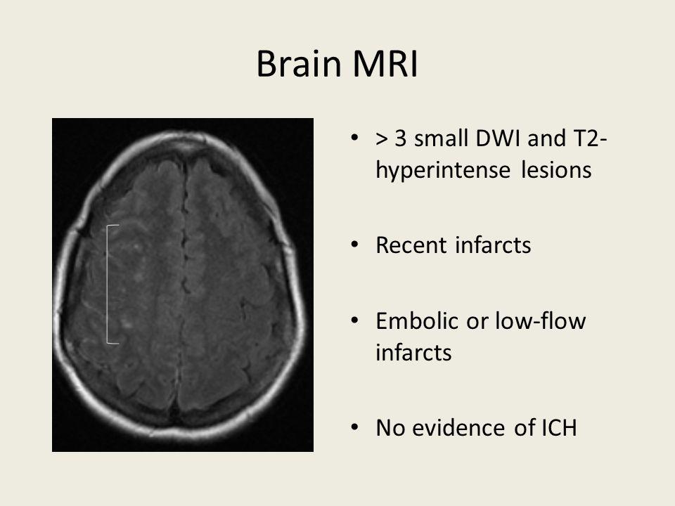 Brain MRI > 3 small DWI and T2- hyperintense lesions