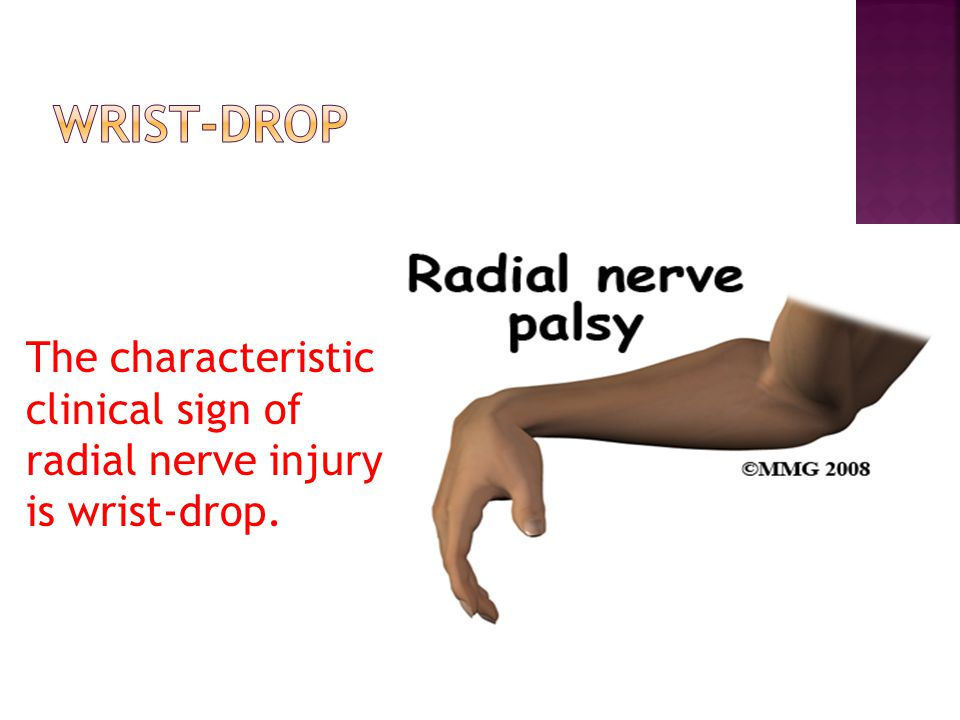 wrist-drop The characteristic clinical sign of radial nerve injury is wrist-drop.