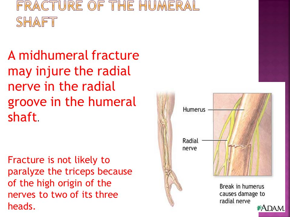 Fracture of the Humeral Shaft