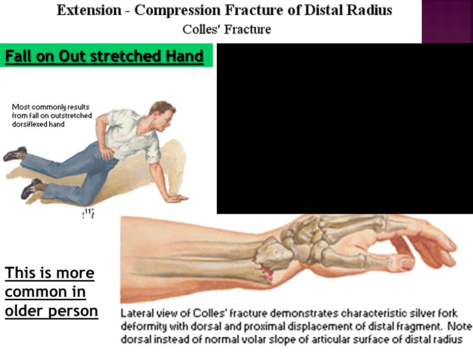 Overall : Dorsal Displacement of Wrist and Hand
