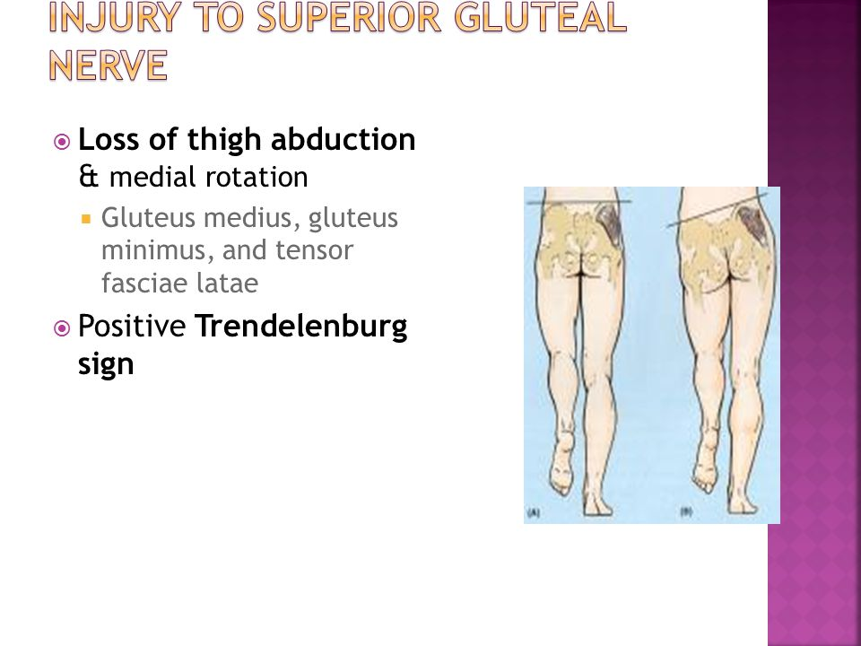Injury to superior gluteal nerve