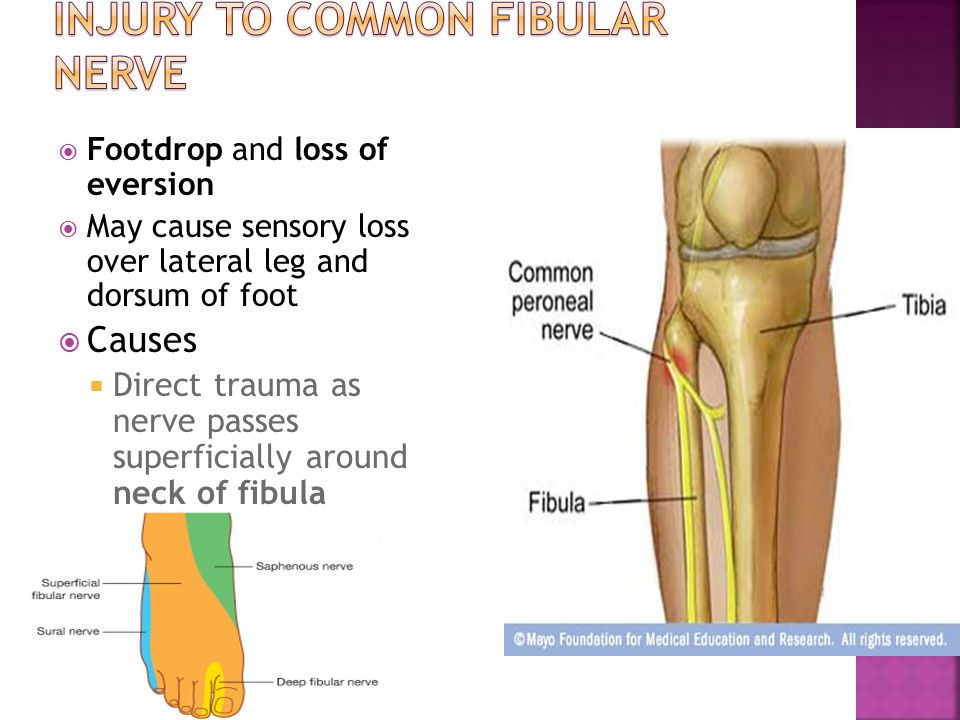 Injury to common fibular nerve