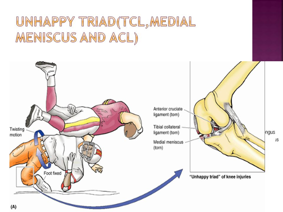 Unhappy triad(TCL,MEDIAL MENISCUS AND ACL)
