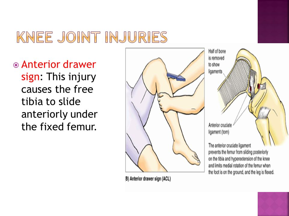 Knee Joint Injuries Anterior drawer sign: This injury causes the free tibia to slide anteriorly under the fixed femur.