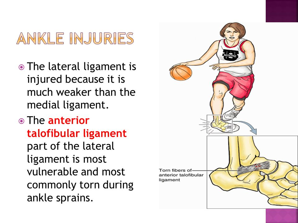 Ankle Injuries The lateral ligament is injured because it is much weaker than the medial ligament.