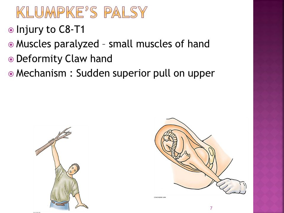 Klumpke's palsy Injury to C8-T1