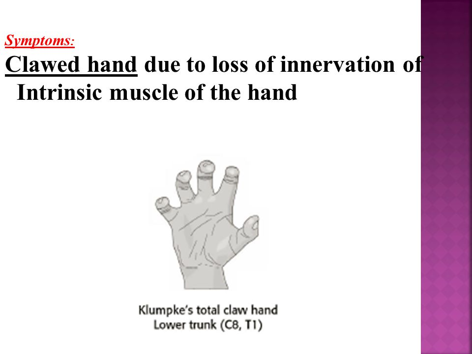 Clawed hand due to loss of innervation of Intrinsic muscle of the hand
