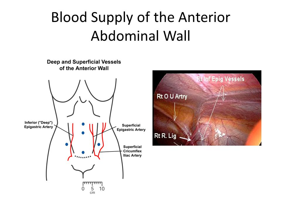 Blood Supply of the Anterior Abdominal Wall