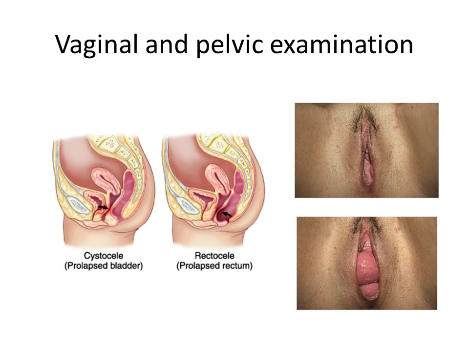 Vaginal and pelvic examination