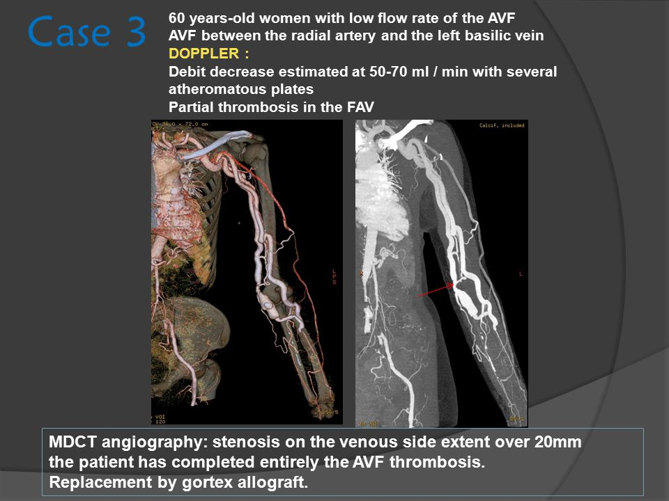 Case 3 MDCT angiography: stenosis on the venous side extent over 20mm