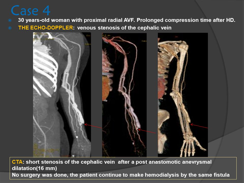 Case 4 30 years-old woman with proximal radial AVF. Prolonged compression time after HD. THE ECHO-DOPPLER: venous stenosis of the cephalic vein.