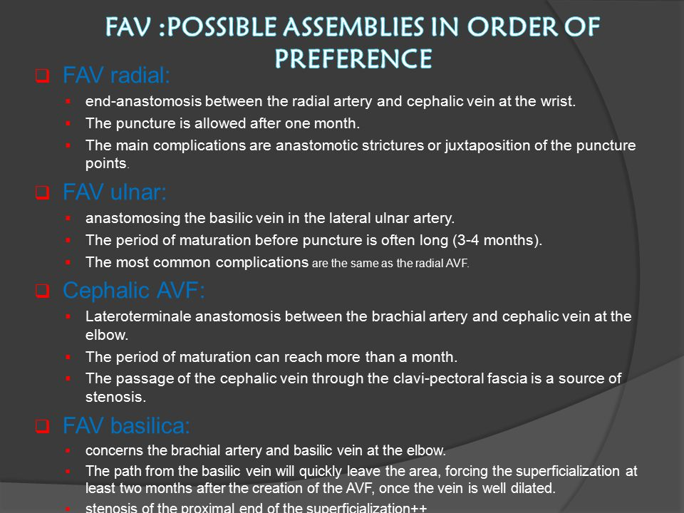 FAV :possible assemblies in order of preference